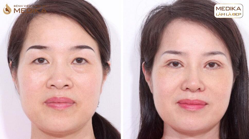 Có thể thực hiện lấy mỡ mí mắt chung với các dịch vụ mắt khác không? - MEDIKA.vn