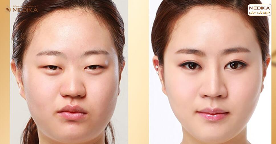 Đôi mắt trẻ trung thu hút mọi ánh nhìn nhờ phương pháp lấy mỡ mí mắt - Bệnh viện thẩm mỹ MEDIKA