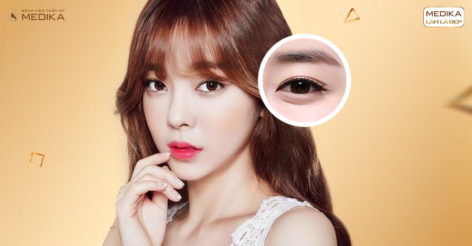 Đôi mắt trẻ trung thu hút mọi ánh nhìn nhờ phương pháp lấy mỡ mí mắt - MEDIKA.vn