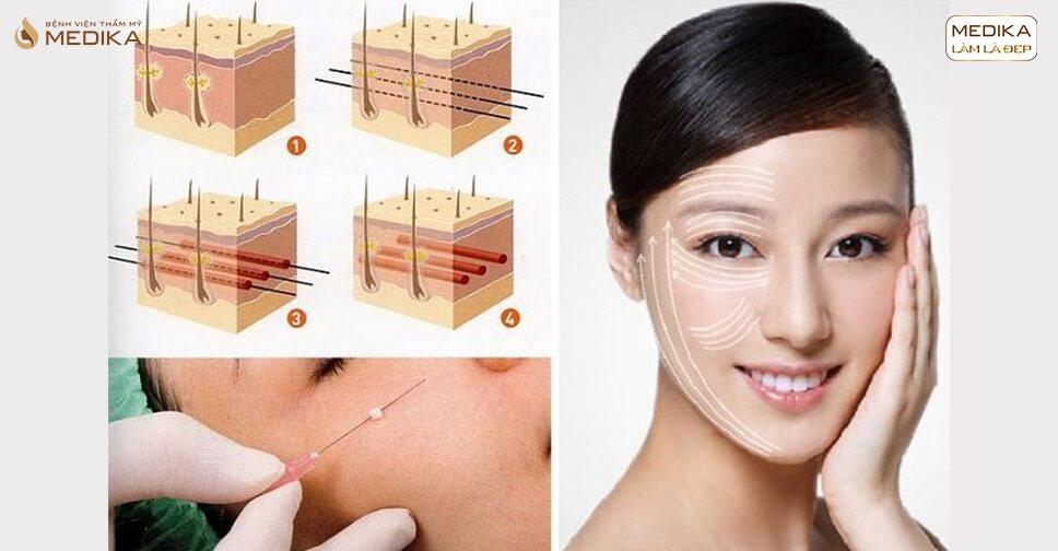 Giải mã cách làm căng da bằng chỉ nâng cơ trẻ hóa - MEDIKA.vn