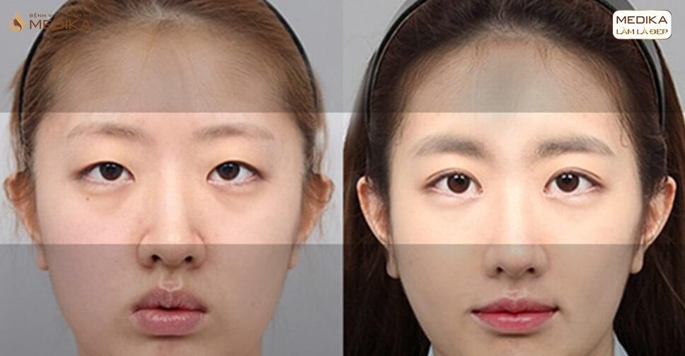 Mở rộng góc mắt cần chú ý điều gì để đôi mắt thêm đẹp - MEDIKA.vn