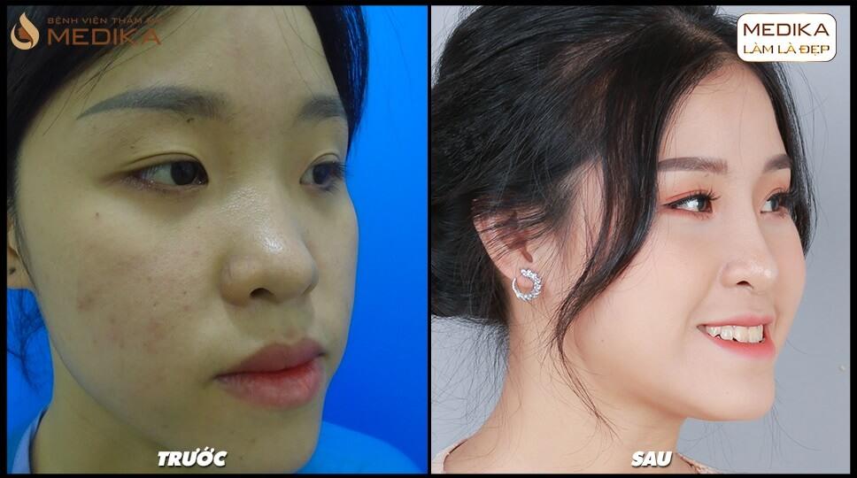 Nâng mũi bọc sụn và những lưu ý từ chuyên gia - MEDIKA.vn
