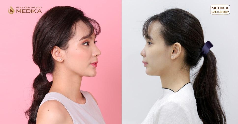Nâng mũi S line đẹp chuẩn sao Hàn - MEDIKA.vn