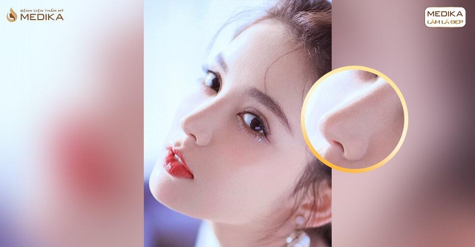 Nâng mũi sụn sườn có nguy hiểm không và giải đáp từ chuyên gia - Bệnh viện thẩm mỹ MEDIKA
