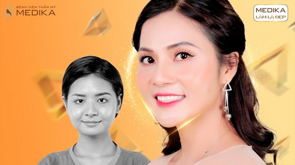 Xu hướng độn cằm V line 2019 ở MEDIKA.vn