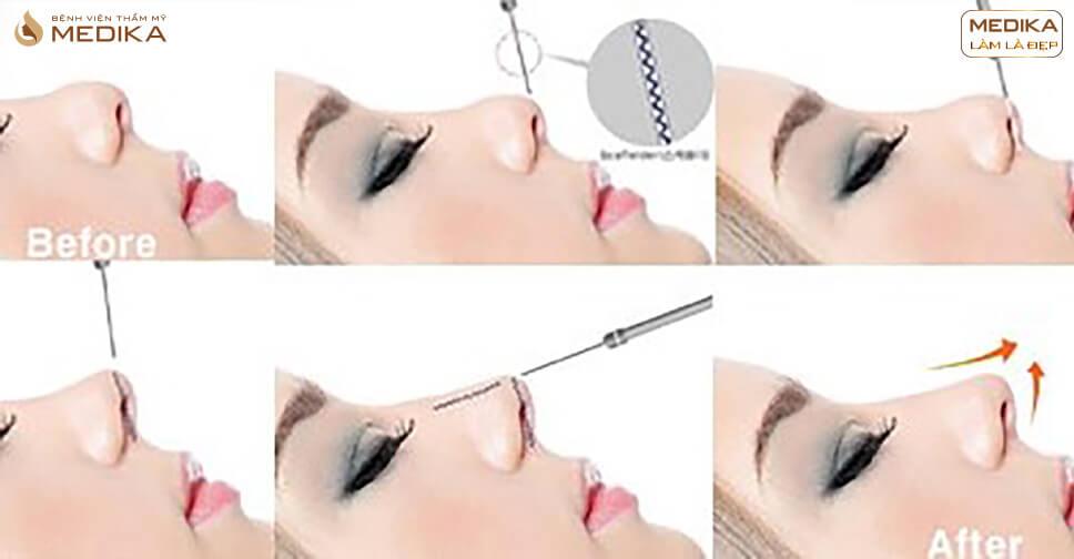 Bật mí những điều chưa từng tiết lộ về phương pháp tiêm Filler mũi - Bệnh viện thẩm mỹ MEDIKA