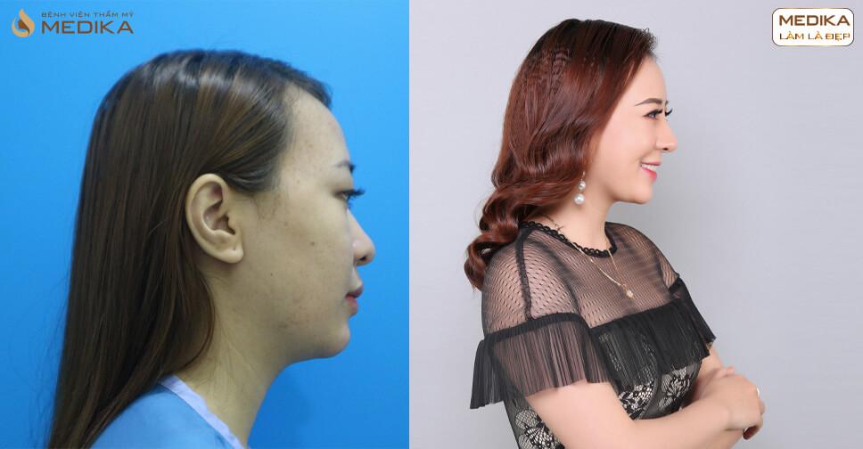 Bật mí những điều chưa từng tiết lộ về phương pháp tiêm Filler mũi - MEDIKA.vn
