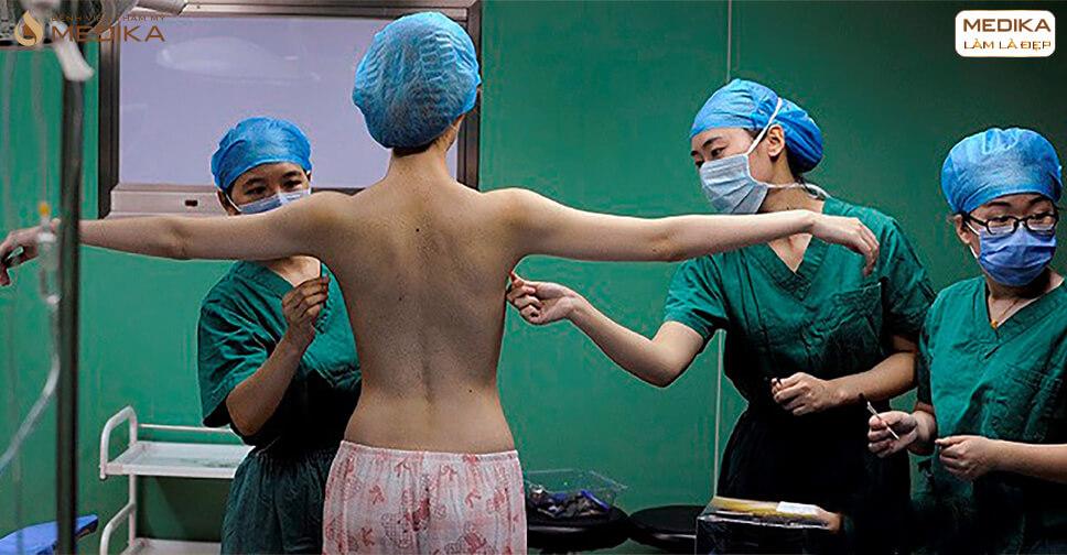 Cận cảnh quy trình thực hiện phẫu thuật nâng vòng 1 nội soi tại MEDIKA - MEDIKA.vn