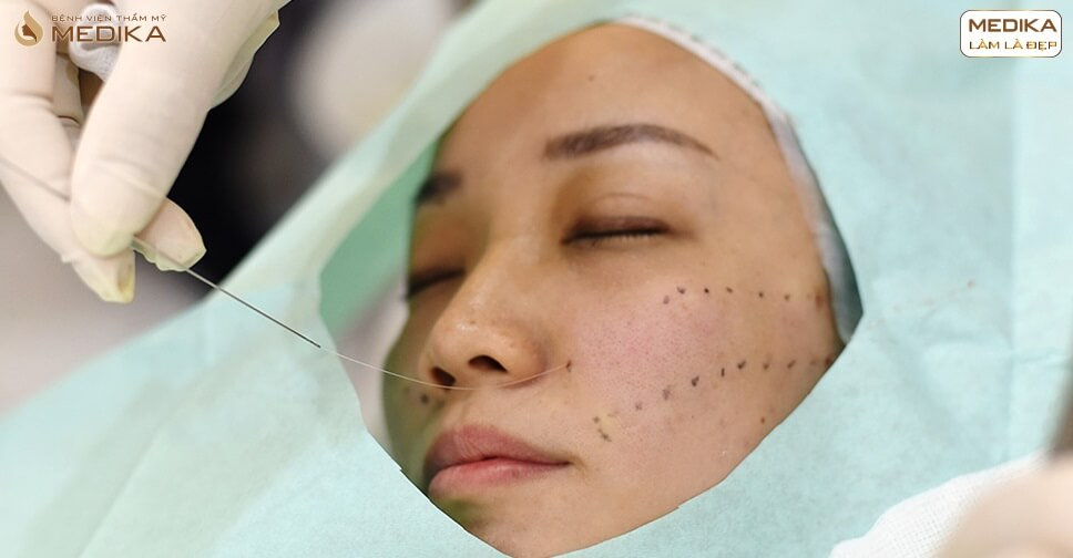 Căng da bằng chỉ và những điều bạn không nên bỏ qua - MEDIKA.vn