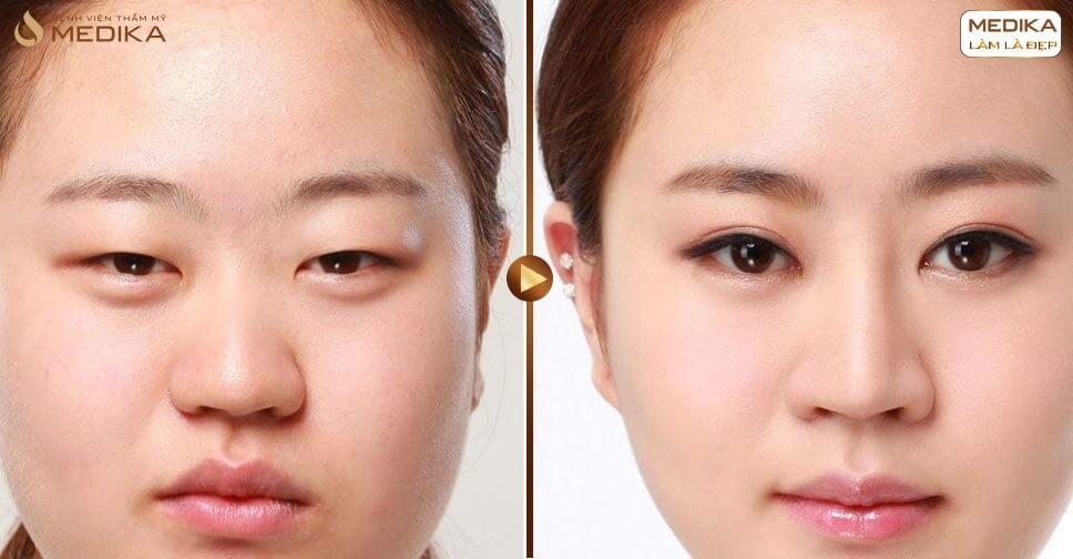 Cắt mí Hàn Quốc ở đâu đẹp và chất lượng an toàn? - MEDIKA.vn