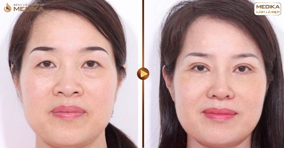 Chia sẻ ngay tuyệt chiêu lấy mỡ mí mắt an toàn và chất lượng - MEDIKA.vn