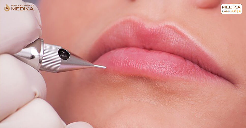 Đừng bỏ qua những điều này trước khi phun môi Nano - Bệnh viện thẩm mỹ MEDIKA