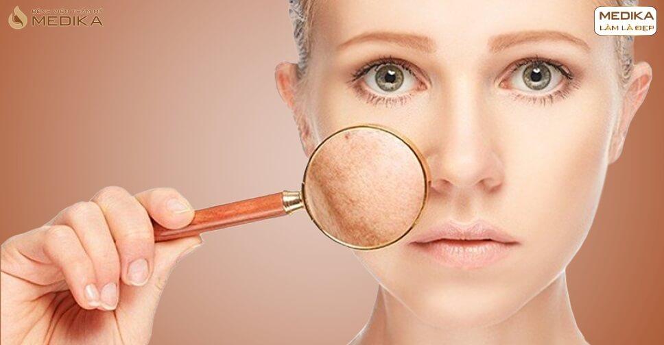Lăn kim tế bào gốc mang lại hiệu quả gì cho làn da của bạn - Bệnh viện thẩm mỹ MEDIKA