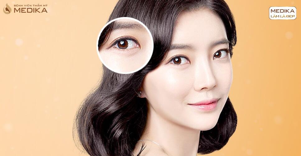 Mở rộng góc mắt công nghệ Hàn Quốc mang đến đôi mắt đẹp tuyệt hảo - Bệnh viện thẩm mỹ MEDIKA
