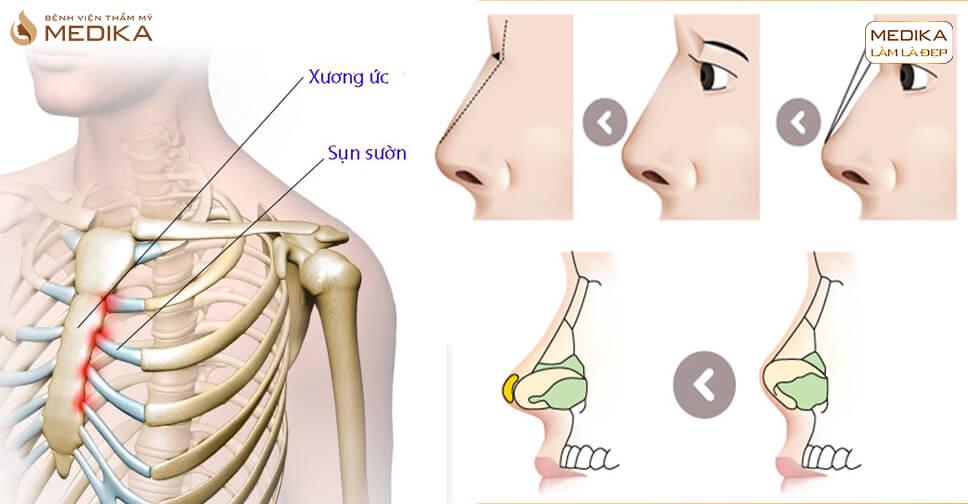 Nâng mũi sụn sườn - Công nghệ nâng mũi của tương lai - MEDIKA.vn
