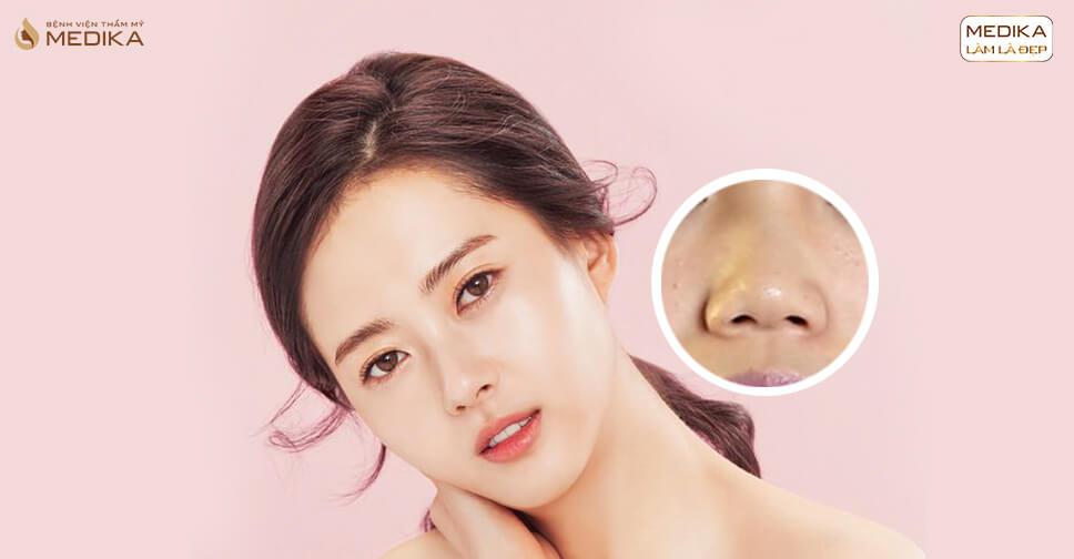 Thu nhỏ đầu mũi không cần phẫu thuật bạn đã biết giải pháp này? - Bệnh viện thẩm mỹ MEDIKA