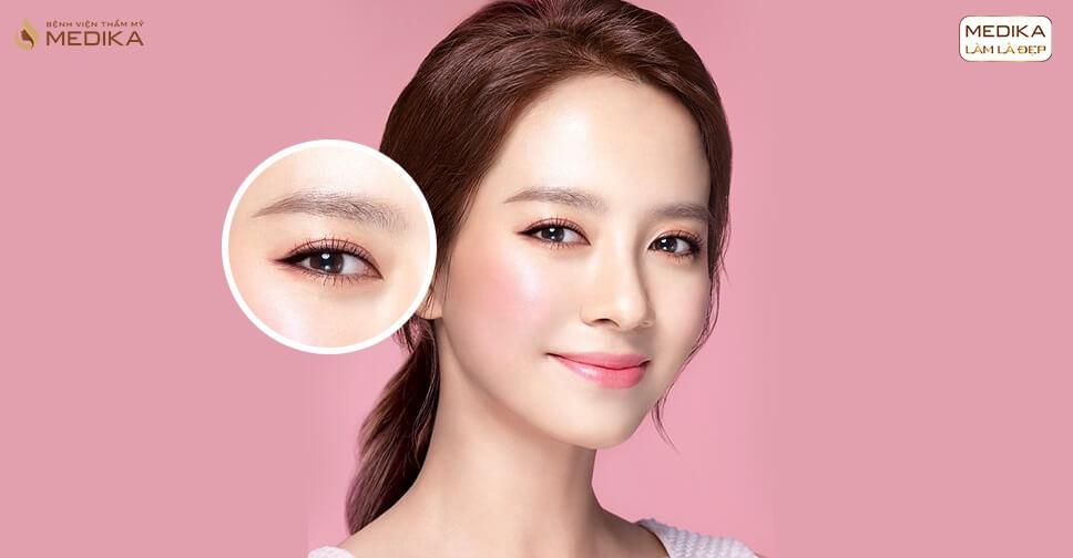 3 giai đoạn bạn cần trải qua khi thực hiện cắt mắt 2 mí - MEDIKA.vn