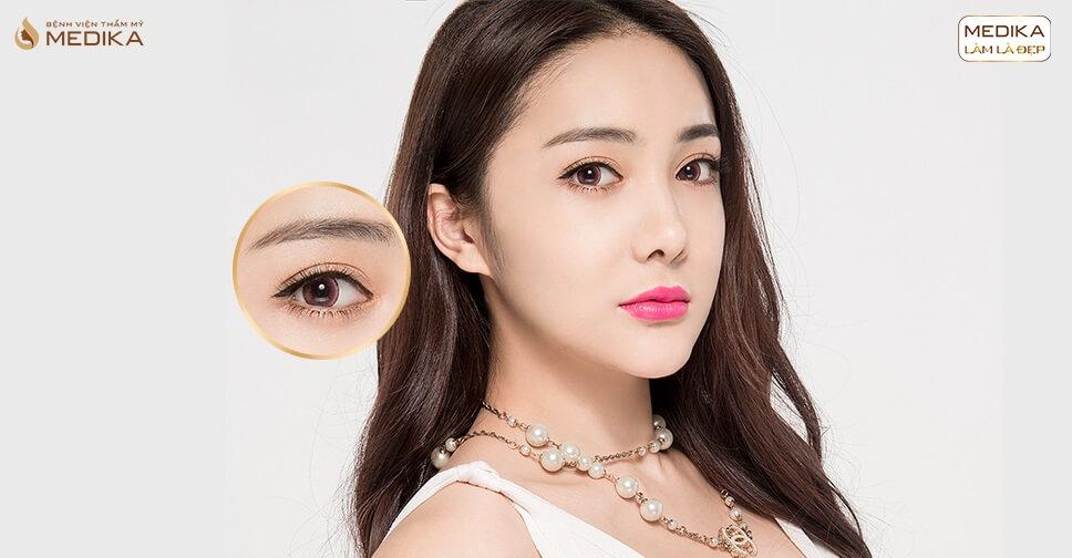 Dẹp bỏ nỗi lo mắt xấu với phương pháp phẫu thuật mắt to Barbie - Bệnh viện thẩm mỹ MEDIKA