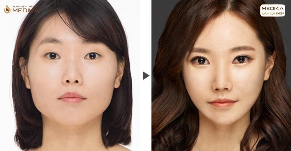 Dẹp bỏ nỗi lo mắt xấu với phương pháp phẫu thuật mắt to Barbie - MEDIKA.vn