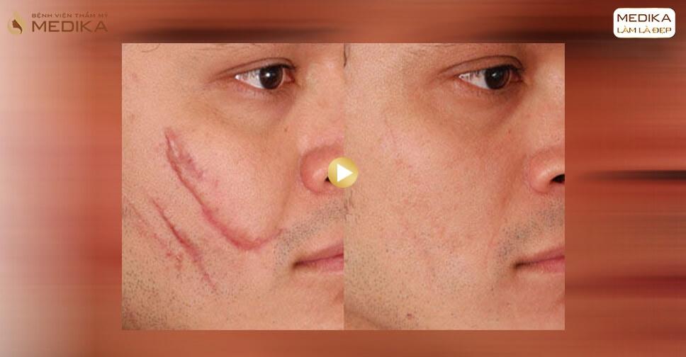 Hình ảnh điều trị sẹo lồi - Bệnh viện thẩm mỹ MEDIKA