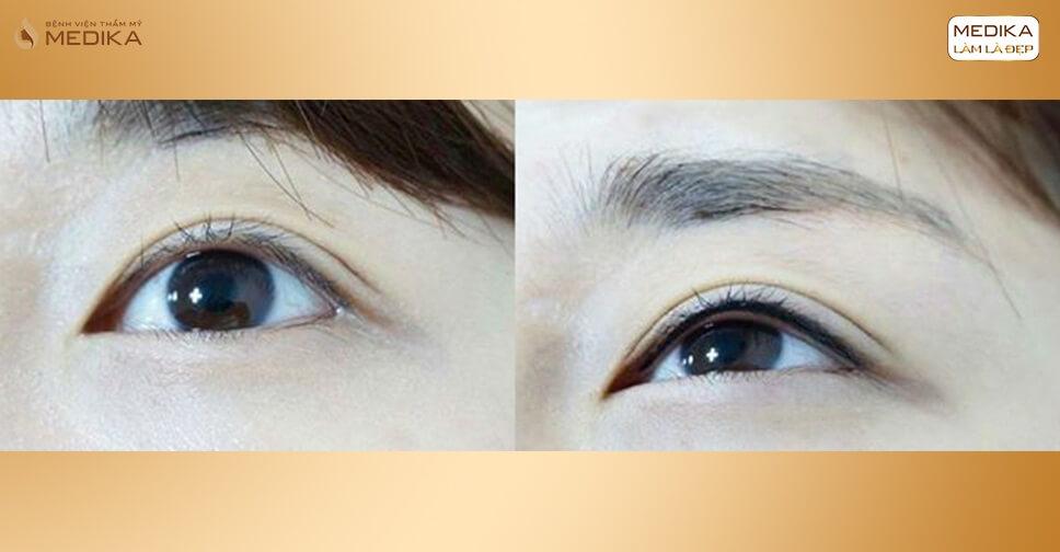 Hình ảnh trước sau phun mí Eyeliner - MEDIKA.vn