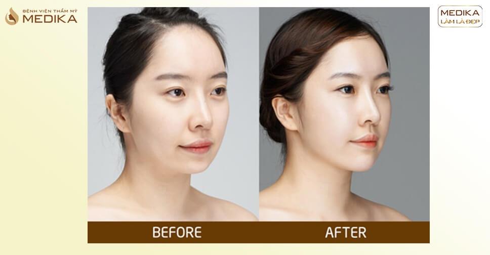 Hình ảnh trước sau tạo hình gương mặt đẹp - MEDIKA.vn