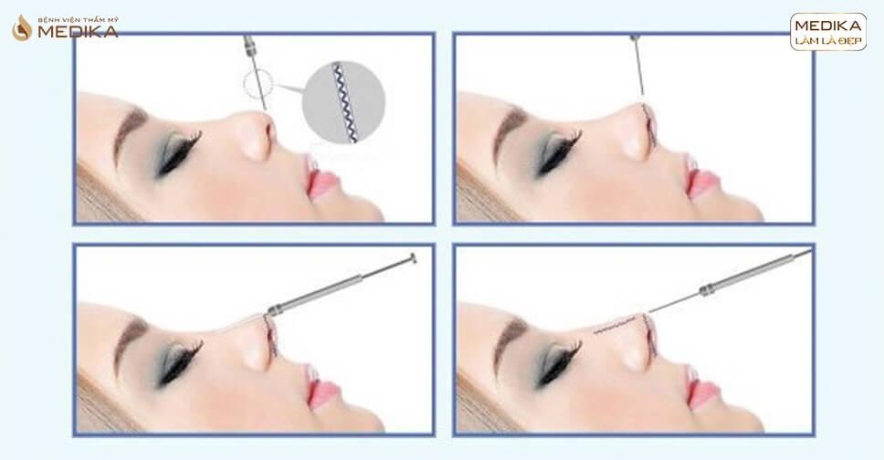 Nâng mũi bằng chỉ - Công nghệ nâng mũi xu hướng tương lai - MEDIKA.vn