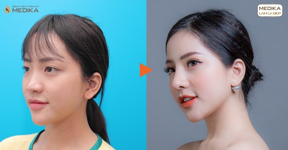 Nâng mũi bằng sụn sườn - Sự lựa chọn dành cho các cô nàng mũi hỏng - MEDIKA.vn