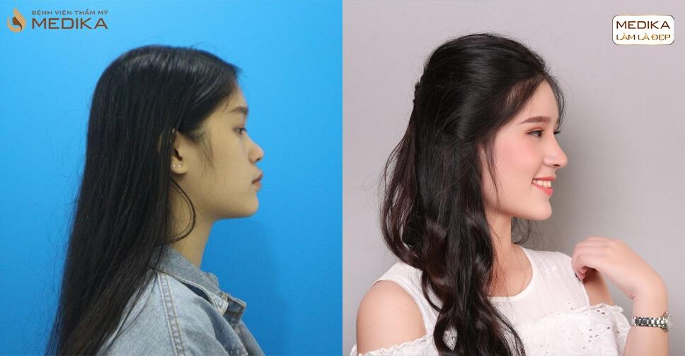 Những nỗi niềm lo lắng của các chị em khi tiêm Filler mũi - MEDIKA.vn