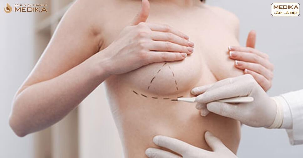 Phẫu thuật chỉnh sửa ngực hỏng - Tái tạo lại ngực mới hoàn toàn - MEDIKA.vn