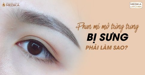 Phun mí mắt mở tròng xong bị sưng phải làm sao?