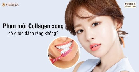Phun môi Collagen xong có được đánh răng không?