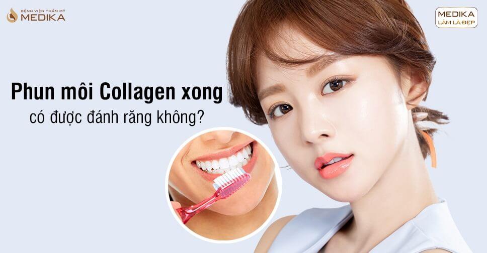 Phun môi Collagen xong có được đánh răng không? - Bệnh viện thẩm mỹ MEDIKA