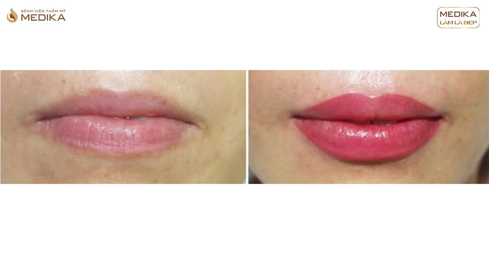 Phun môi Collagen xong có được đánh răng không? - MEDIKA.vn