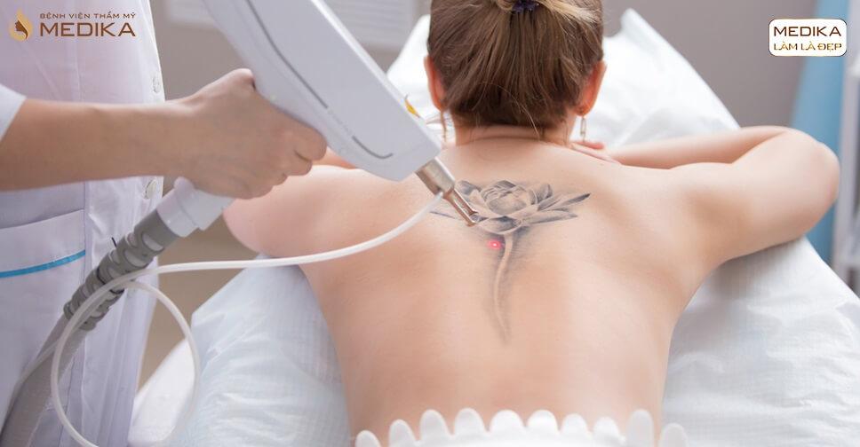 Phương pháp xoá xăm bằng Laser Q-Switches có để lại sẹo - Bệnh viện thẩm mỹ MEDIKA