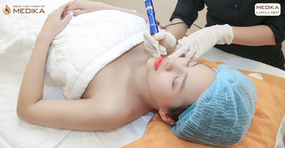 Quy trình thực hiện phun môi DIKA - MEDIKA.vn