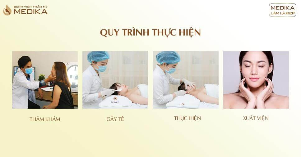 Quy trình thực hiện tạo hình má Baby không phẫu thuật - MEDIKA.vn