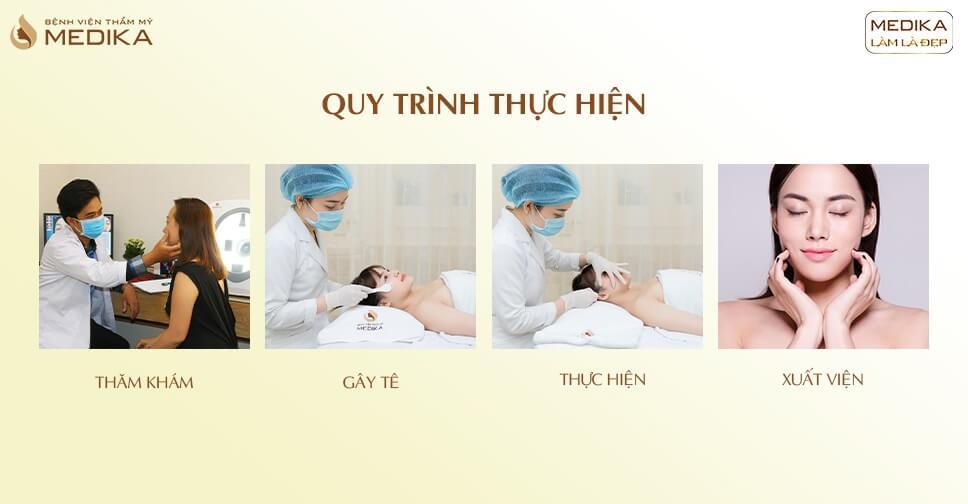 Thực hiện tiêm Botox (Bolutinum Toxic Type A) - Bệnh viện thẩm mỹ MEDIKA