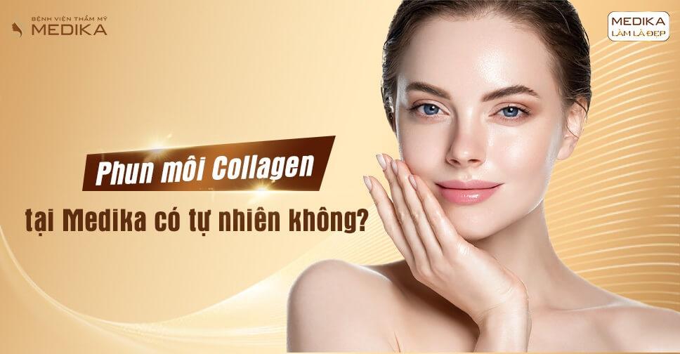 Phun môi Collagen tại MEDIKA có tự nhiên không? - MEDIKA.vn