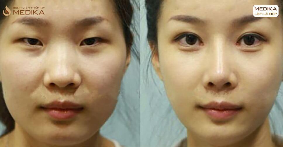 Rộ phong trào cắt mắt hai mí tại châu Á - MEDIKA.vn