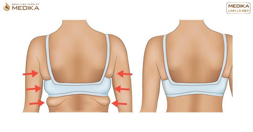 Hút mỡ lưng là gì? Có đau và nguy hiểm không?