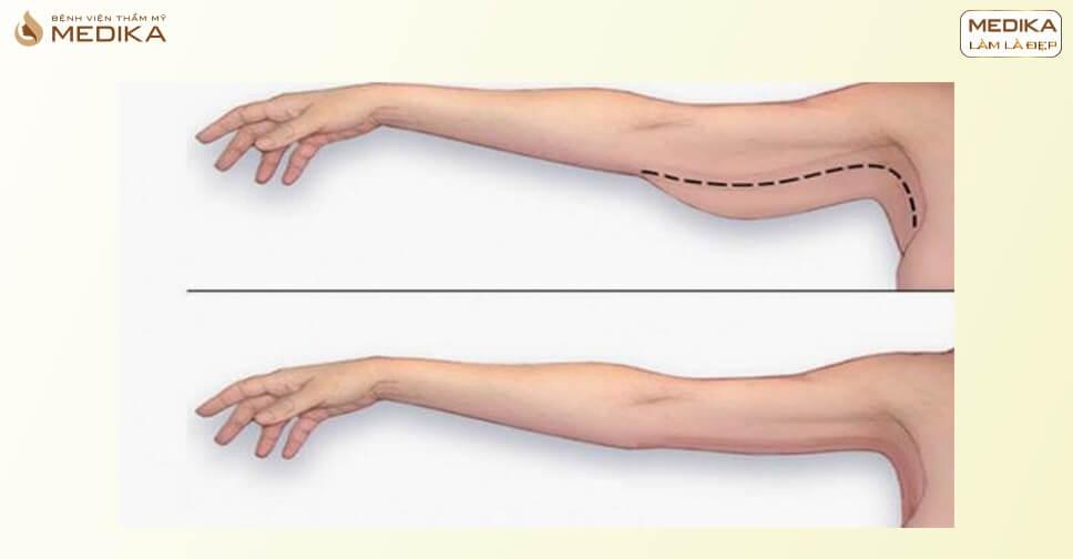 Hút mỡ tay, cánh tay là gì? Có đau và nguy hiểm không?