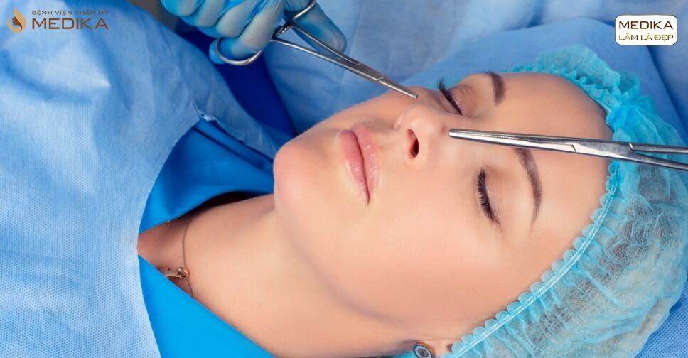 Nâng mũi 3D mang lại vẻ đẹp hài hòa cho gương mặt - MEDIKA.vn