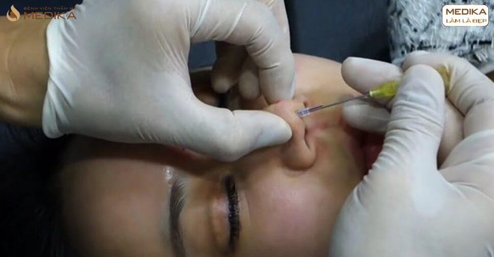 Nâng mũi bằng chỉ không phẫu thuật xu hướng nâng mũi 2020 - MEDIKA.vn
