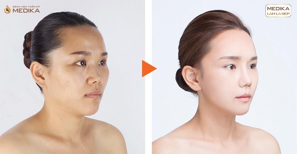 Nâng mũi sụn tự thân - Trào lưu nâng mũi năm 2020 - MEDIKA.vn