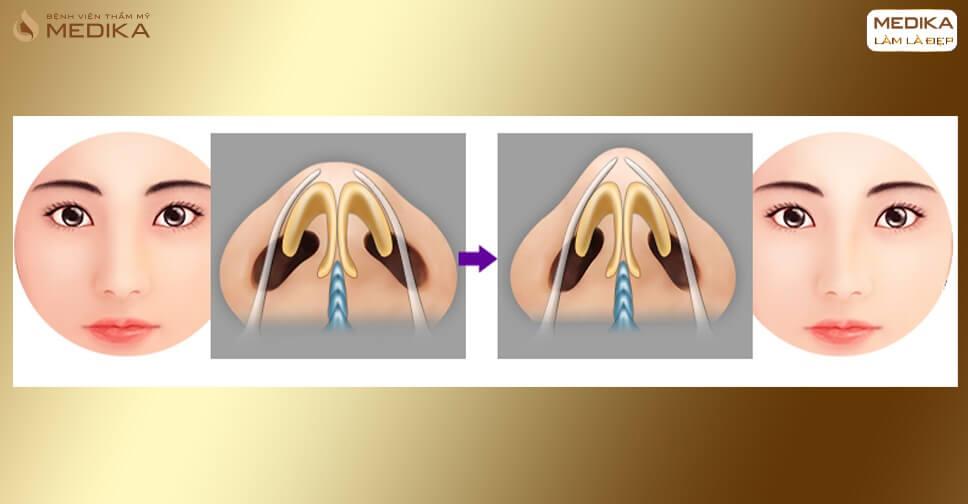 Những biến chứng đáng sợ khi thu nhỏ đầu mũi không đúng cách - Bệnh viện thẩm mỹ MEDIKA