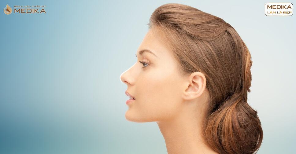 Những đối tượng nào thích hợp nâng mũi sụn sườn? - Bệnh viện thẩm mỹ MEDIKA