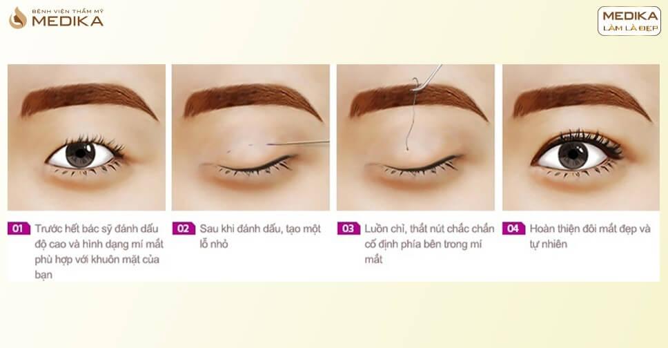 Review cắt mí mắt khác gì so với bấm mí mắt?