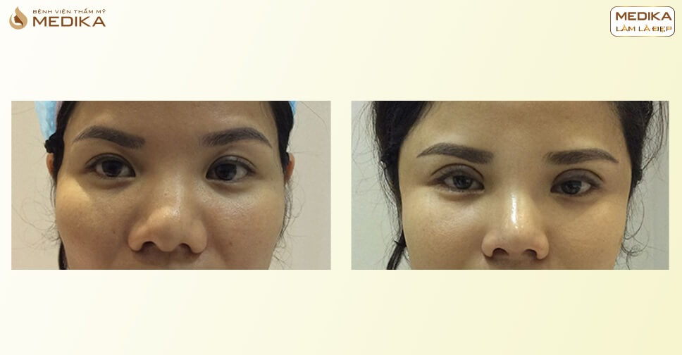 Thu nhỏ đầu mũi và những điều cần lưu ý để đạt kết quả cao - MEDIKA.vn