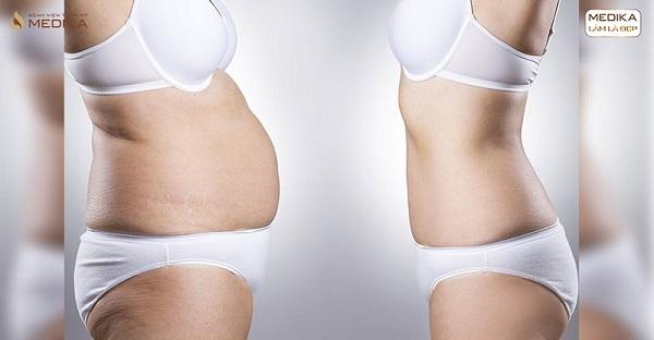 6 tháng ăn kiêng không bằng 90 phút hút mỡ bụng